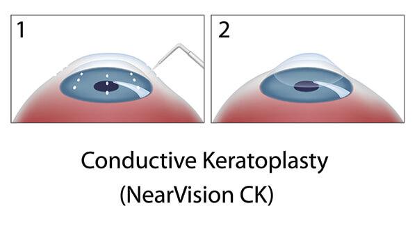 Chart showing CK surgery