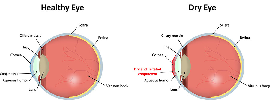 Chart showing an eye with dry eye compared to a normal eye
