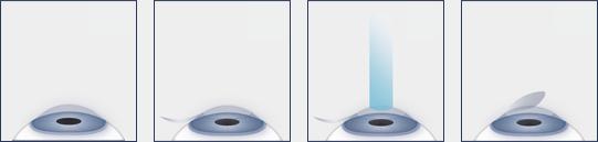 LASIK procedure diagram