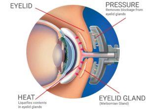LipiFlow Dry Eyes Treatment Diagram