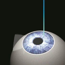 Cornea laser